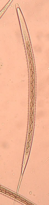 The third infective larval stage of the large strongyle Strongylus vulgaris, which are commonly called bloodworms.