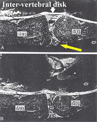 The yellow arrow is directed toward the bulging of the intervertebral disk. The vertebral body on the left is the 6th Lumbar vertebrae and the vertebral body on the right is the first sacral. For comparison, the same vertebral segment is pictured during extension of the spine. (Lower part of the picture.) The intervertebral disk is then stressed differently