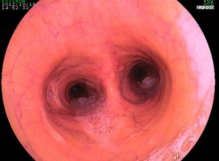 Picture taken with an endoscope of the bronchi of a horse with recurrent airway obstruction or asthma. Note how due to bronchoconstriction the diameter of the bronchi is narrower in this image compared to the image below.