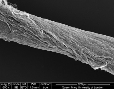 A scanning electron microscopy image shows the helix structure in a tendon fascicle.