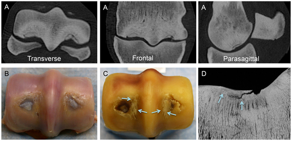 Representative images of the distal end of the third metacarpal bone illustrating articular saucer stress fracture formation in a racing Thoroughbred horse with severe palmar osteochondral disease. (A) In reconstructed computed tomography images, a circular articular saucer fracture is present in both condyles. A halo of reduced bone density adjacent to the saucer fracture is caused by the reparative remodeling response in the subchondral plate. Extensive adaptive subchondral sclerosis is also evident. (B) Hyaline cartilage overlying the stress fracture has been replaced by fibrocartilage. (C) Extensive fatigue damage to the underlying subchondral plate is also evident, including parasagittal cracks in the condylar grooves (arrows). (D) Propagation of the fracture line at the interface of the vascular remodeling response to the fatigue injury in the subchondral plate is evident (arrows) on a microradiograph of an oblique frontal bone section.