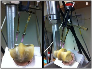 A custom-made jig held the bone to allow load testing.